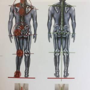 Vera Terpstra van de Fysiotherapiepraktijk 'De Fysiotherapeute' uit Stiens maakt inlegzolen die werken