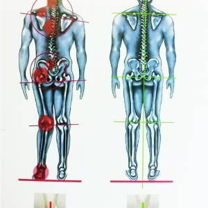 Fysiotherapiepraktijk 'De Fysiotherapeute' uit Stiens maakt inlegzolen die werken